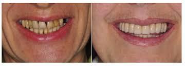 centro implantologia dentale
