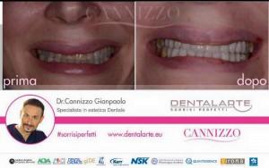 clinica dentale caso clinico